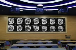 dnp projection screen provides learning platform at Beijing hospital